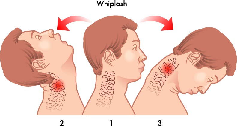 Image result for whiplash injuries